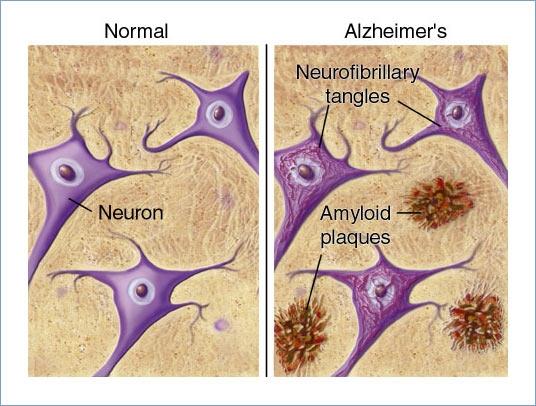 """""""Fumatul nu protejează faţă de apariţia bolii Alzheimer, din contră, o face să apară mai devreme"""""""