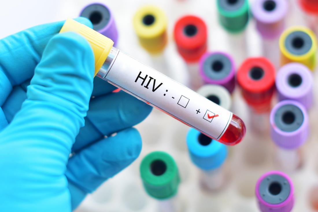 Raport UNICEF. Mulţi tineri nu știu că au HIV