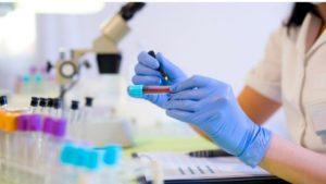 Studiu pentru depistarea cancerului