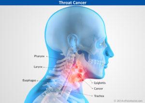 Cancerele de cap și gat, depistate tardiv