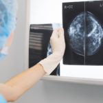 Depistarea și tratarea tumorilor maligne mamare