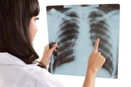 Program de finanțare a markerilor moleculari pentru stabilirea diagnosticului  primar precis în cancerul pulmonar