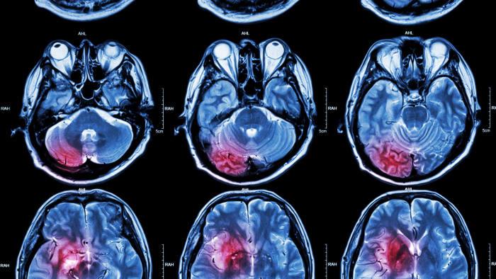Studiu. Stimularea electrică a creierului îmbunătățește semnificativ memoria bătrânilor