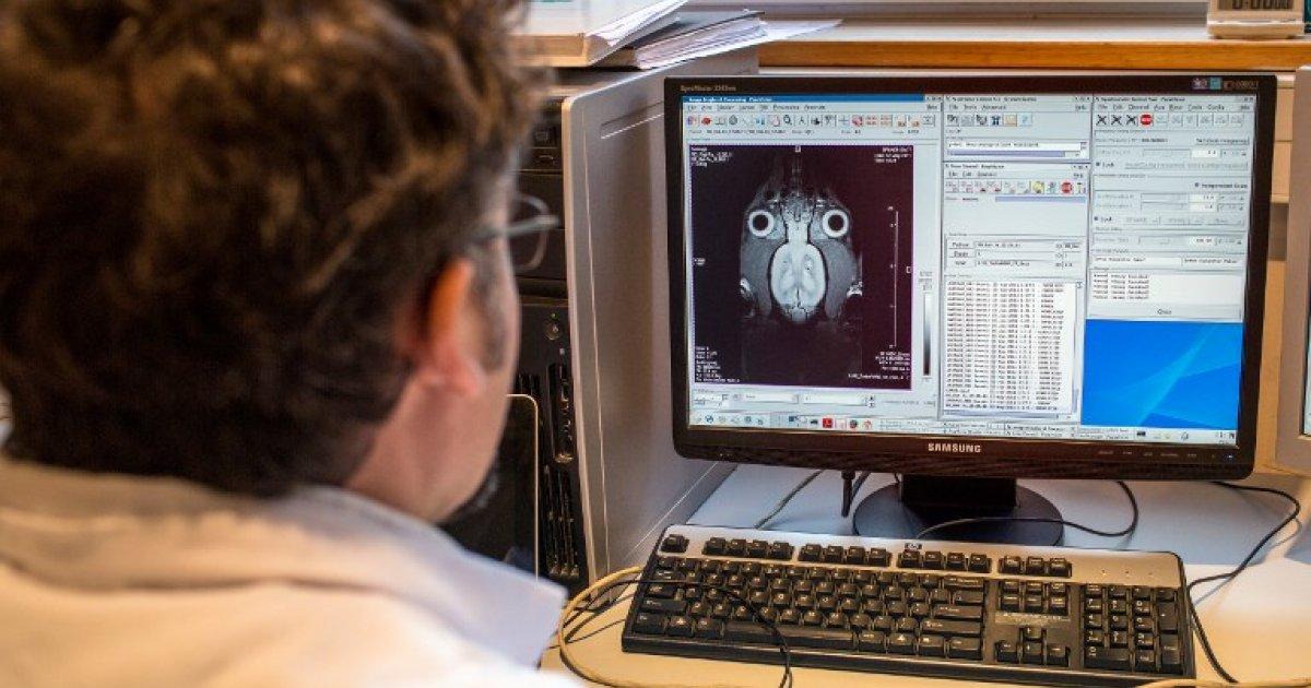 Scaner pentru depistarea precoce a maladiei Parkinson