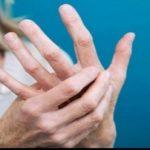 Noi cercetări legate de scleroza multiplă