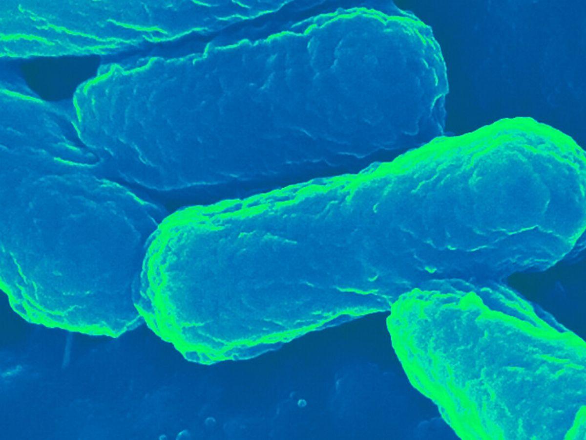 Test revoluționar pentru depistarea unor infecții grave
