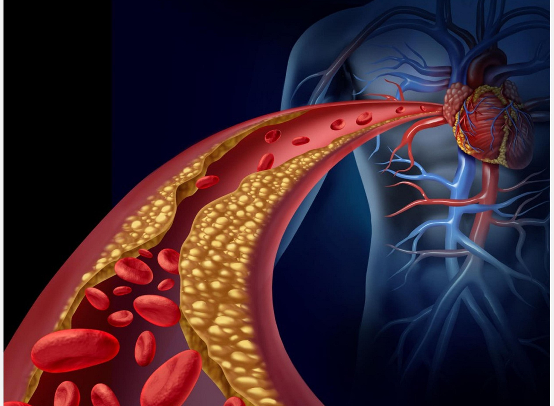 Dislipidemia: clasificare, cauze, prevenție