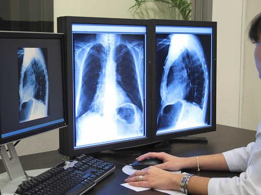 Ziua mondială de luptă împotriva Bronhopneumopatiei obstructive cronice