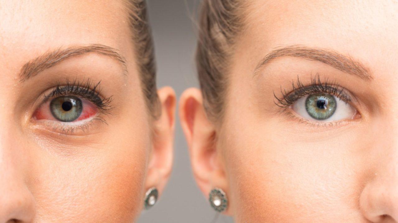 11 sfaturi pentru sănătatea ochilor