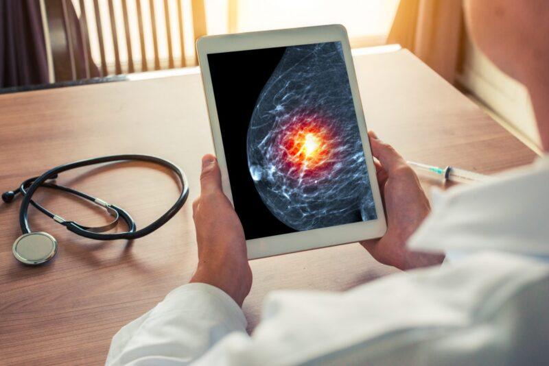 Tratamente naturiste pentru prostata, vindeca cancerul cu radacina de ghimbir - Charmy