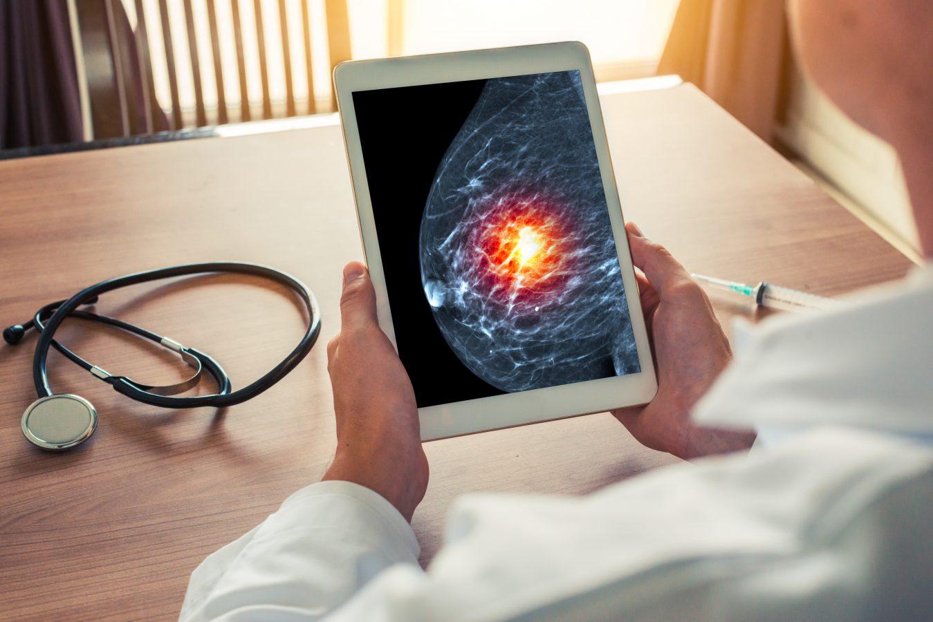 Noi studii privind cancerul de sân