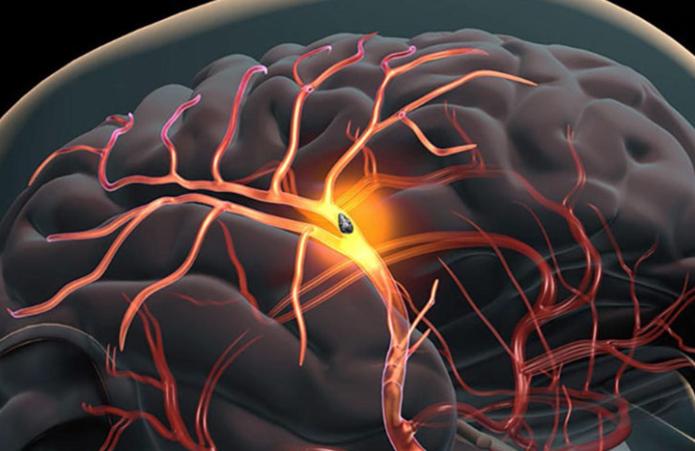 O tehnologie inovatoare prezice cu exactitate recuperarea după un accident vascular cerebral