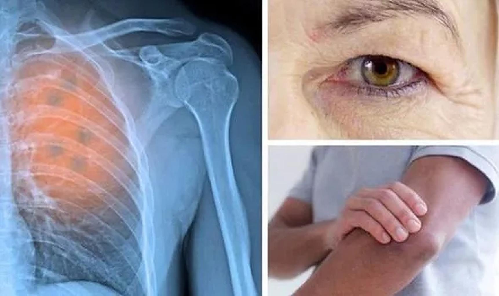 Cancerul pulmonar: Cinci semne și simptome surprinzătoare pe care nu trebuie să le ignorați niciodată