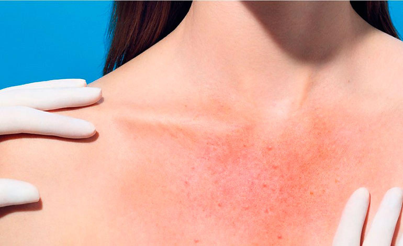 De ce apare alergia la soare. Femeile sunt mult mai afectate decât bărbații