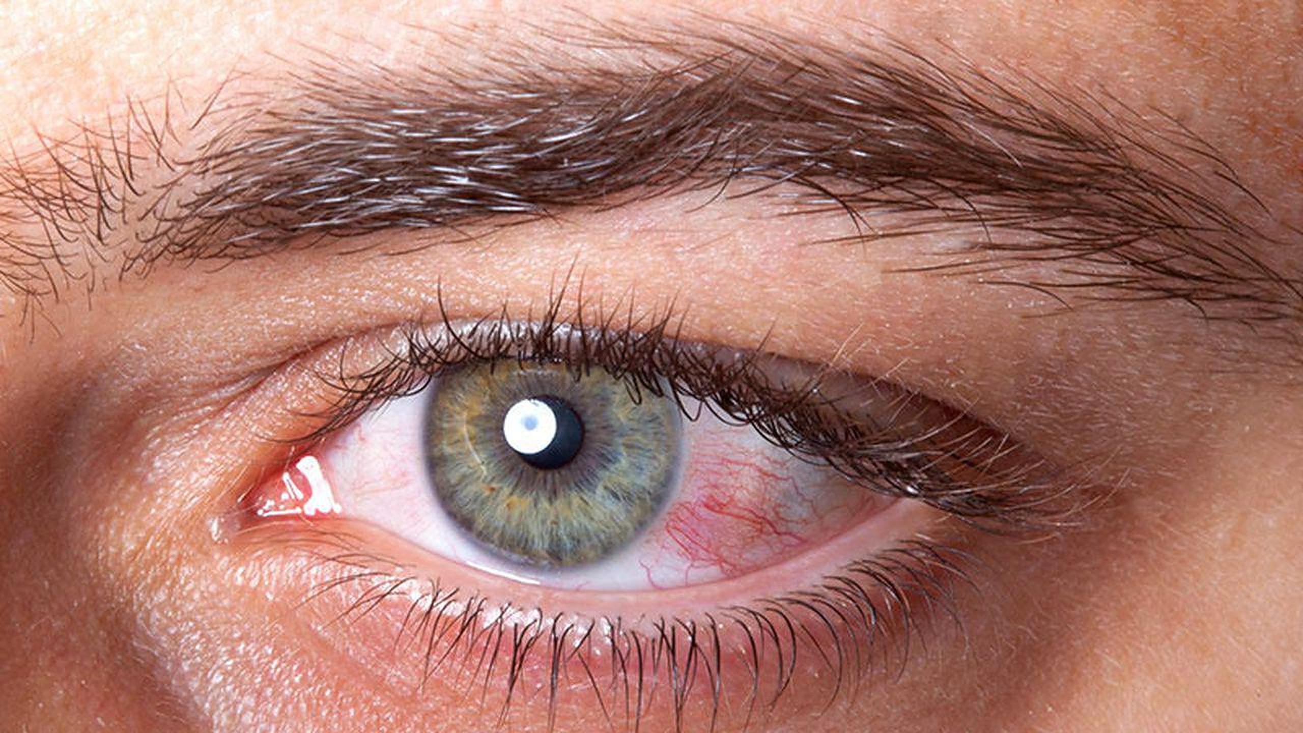 Modificările neobișnuite ale ochilor pot fi indicii ale unor posibile probleme cardiace